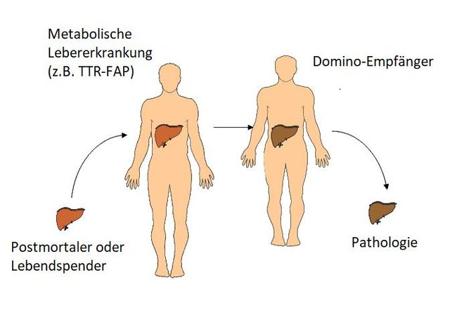 FAP Amyloidose nach Domino-Lebertransplantation